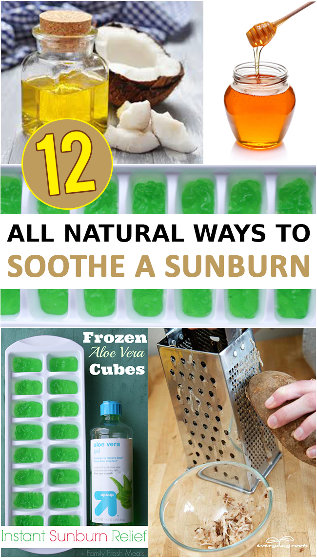 12 All Natural Ways to Soothe a Sunburn